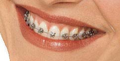 ortho_smile_regular[1]