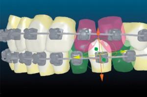 orthodontie-informatisé